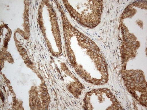 VAPA Antibody in Immunohistochemistry (Paraffin) (IHC (P))