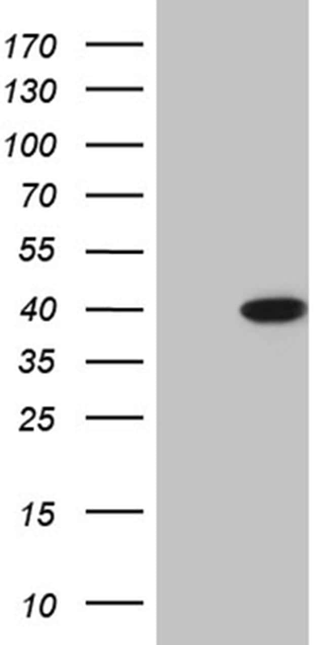 ERLIN1 Antibody in Western Blot (WB)