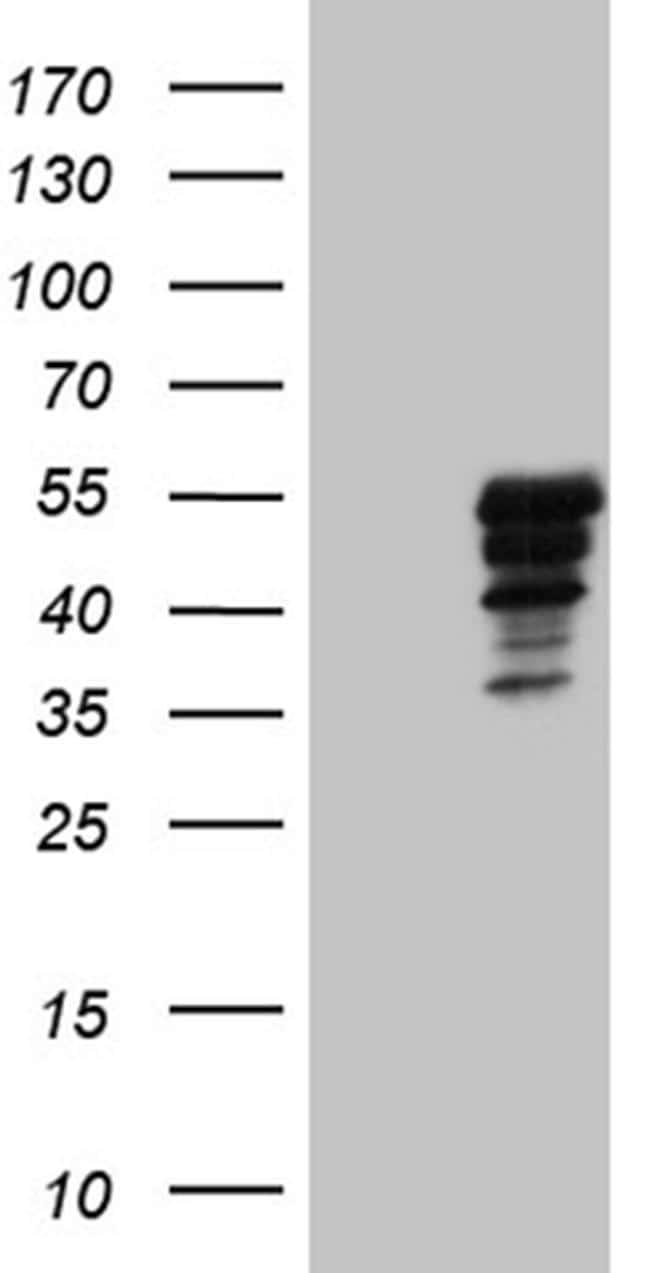 MAGEB4 Antibody in Western Blot (WB)