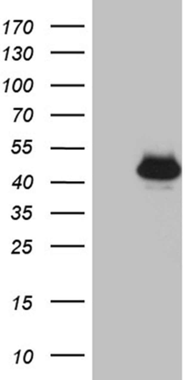 THOC3 Antibody in Western Blot (WB)