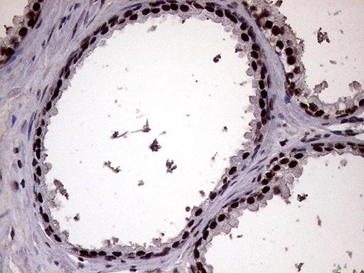 XRN2 Antibody in Immunohistochemistry (Paraffin) (IHC (P))