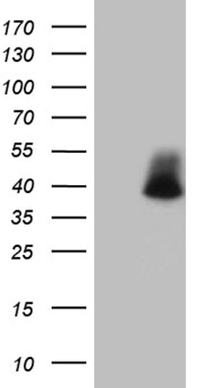 POLR3H Antibody in Western Blot (WB)
