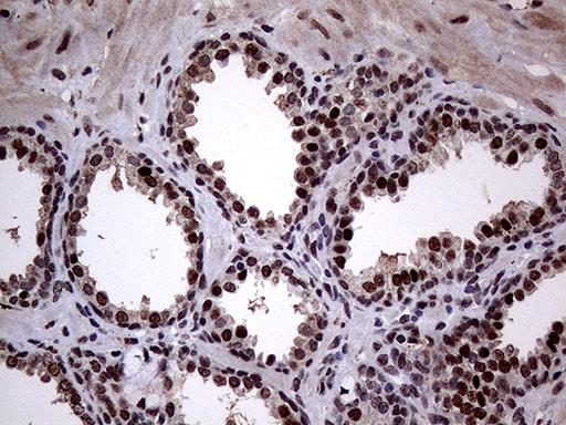 ANP32C Antibody in Immunohistochemistry (Paraffin) (IHC (P))