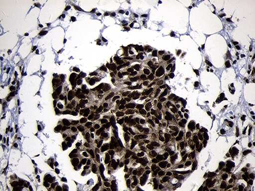 HOXC4 Antibody in Immunohistochemistry (Paraffin) (IHC (P))