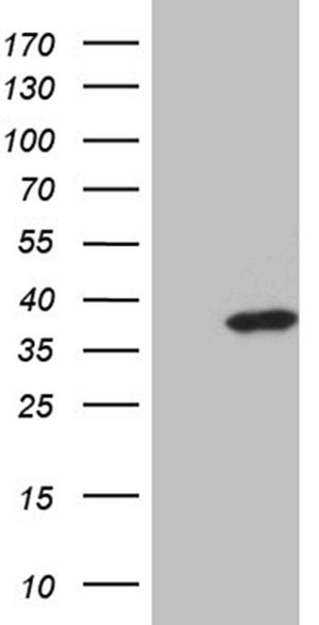 ZMAT4 Antibody in Western Blot (WB)