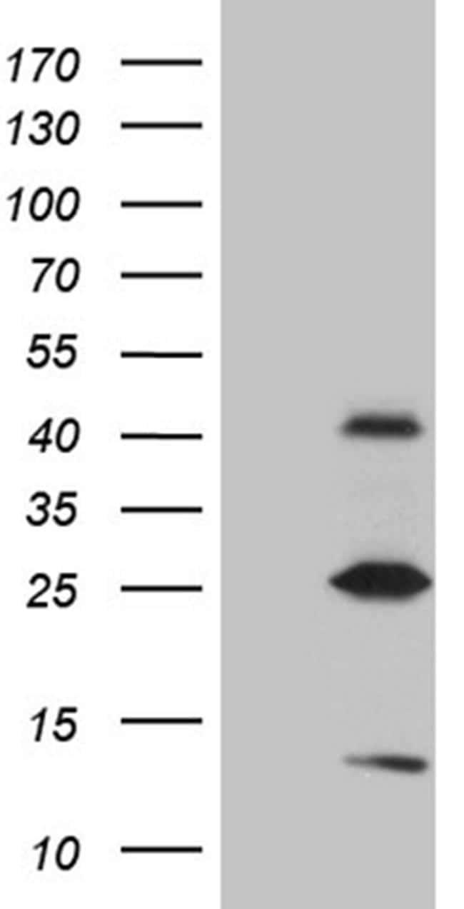 METTL7A Antibody in Western Blot (WB)