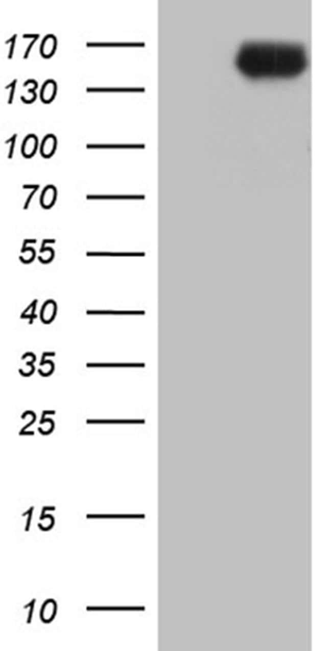 INPP5F Antibody in Western Blot (WB)