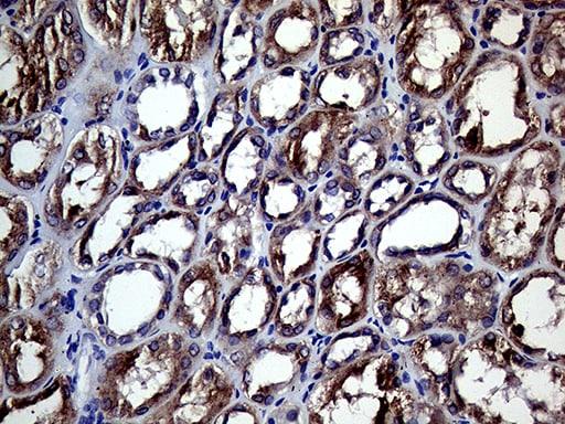 CHP1 Antibody in Immunohistochemistry (Paraffin) (IHC (P))