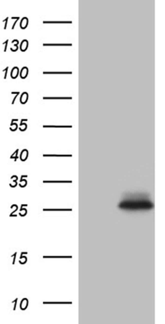 CHP1 Antibody in Western Blot (WB)
