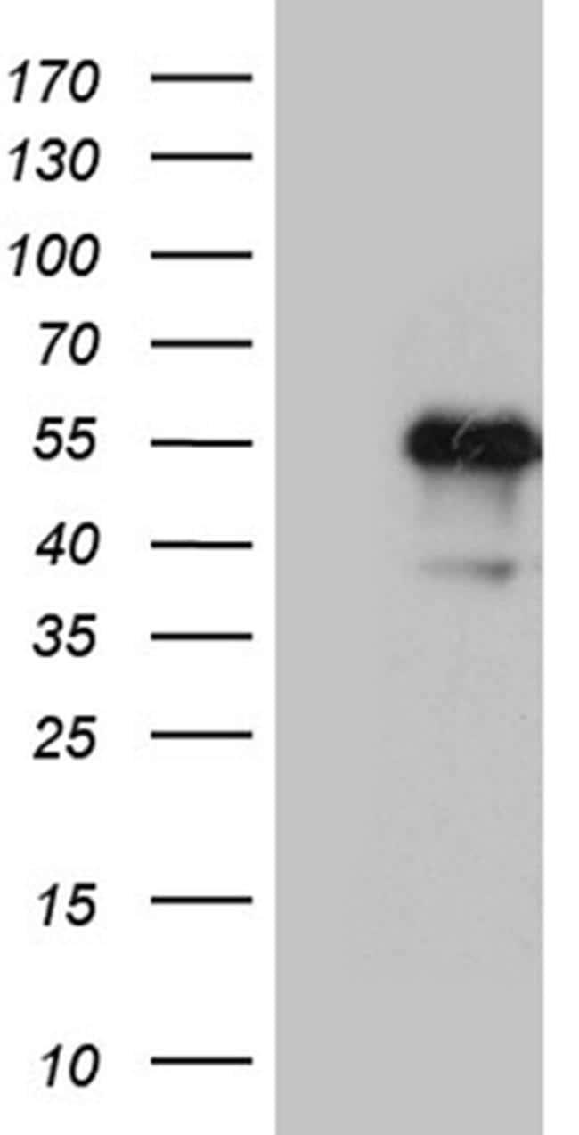 LHX2 Antibody in Western Blot (WB)