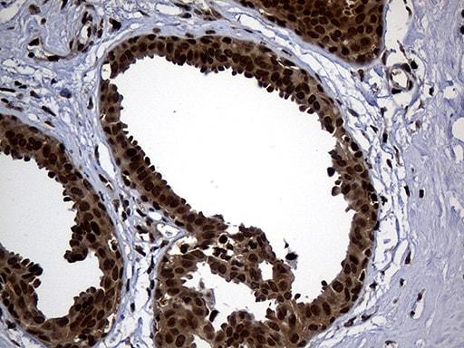 PSMA7 Antibody in Immunohistochemistry (Paraffin) (IHC (P))