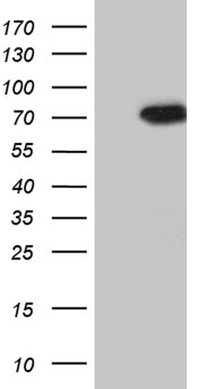 PIKFYVE Antibody in Western Blot (WB)