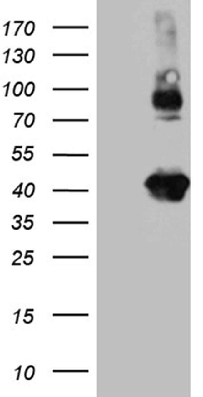 Syntaxin 3 Antibody in Western Blot (WB)