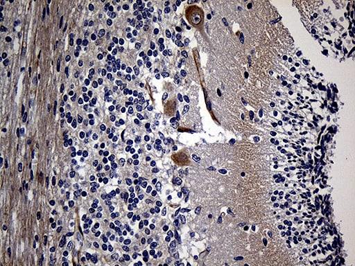 AKAP12 Antibody in Immunohistochemistry (Paraffin) (IHC (P))
