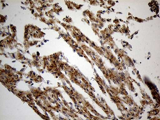 PYGM Antibody in Immunohistochemistry (Paraffin) (IHC (P))