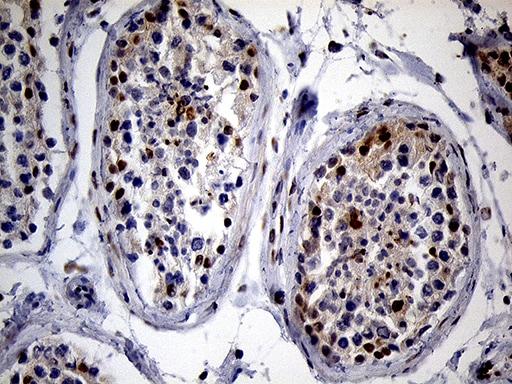 SPANXB1 Antibody in Immunohistochemistry (Paraffin) (IHC (P))