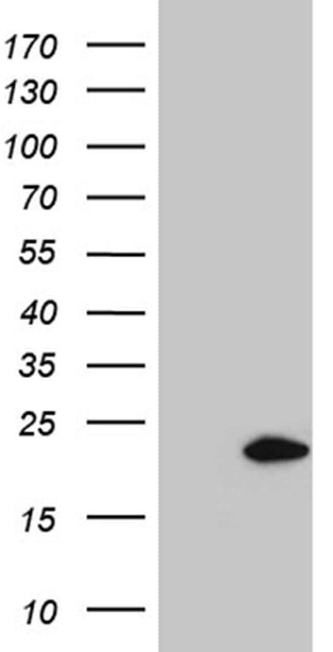 SPANXB1 Antibody in Western Blot (WB)