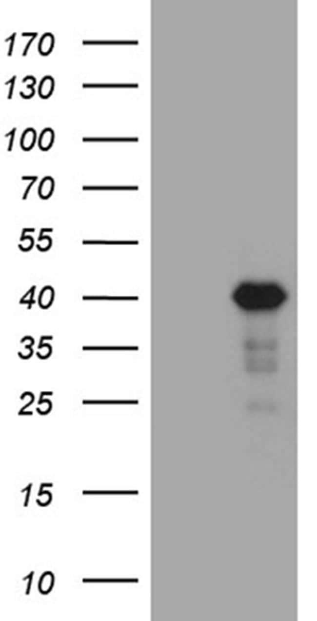 LIMS2 Antibody in Western Blot (WB)