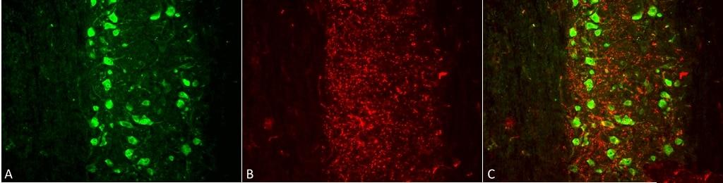 VGLUT1 Antibody in Immunohistochemistry (Paraffin) (IHC (P))