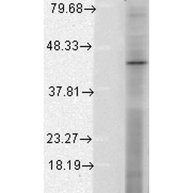 HIF1AN Antibody in Western Blot (WB)