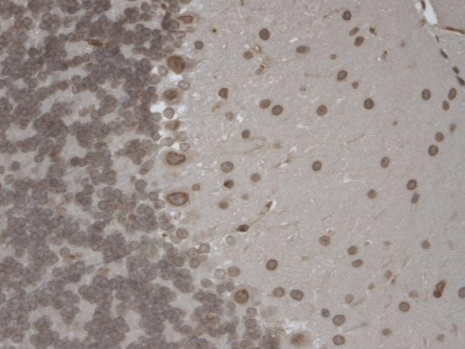 TRPM7 Antibody in Immunohistochemistry (Paraffin) (IHC (P))