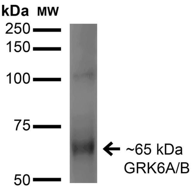 GRK5 Antibody in Western Blot (WB)