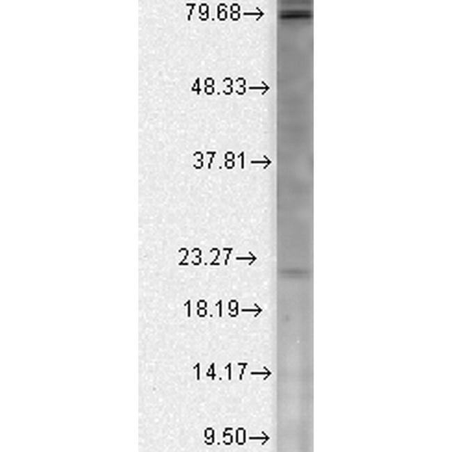 CACNB2 Antibody in Western Blot (WB)