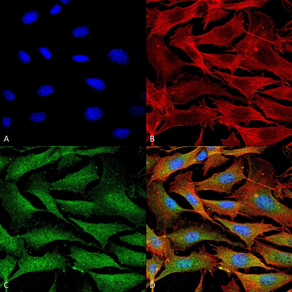 ATP7A Antibody in Immunofluorescence (IF)