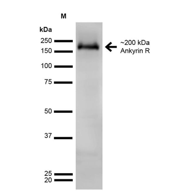 Ankyrin 1 Antibody in Western Blot (WB)