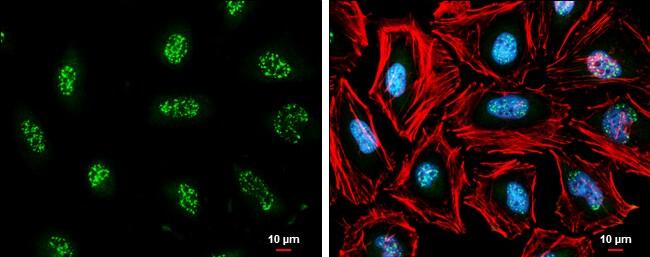 cIAP1 Antibody in Immunocytochemistry (ICC)