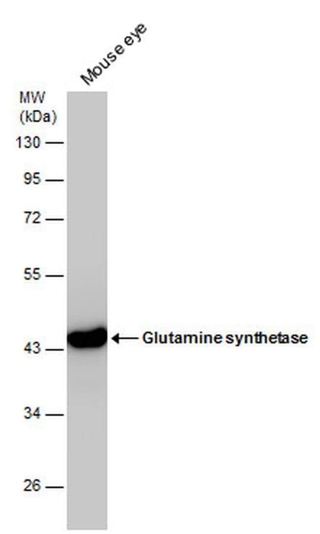 Glutamine Synthetase Antibody in Western Blot (WB)