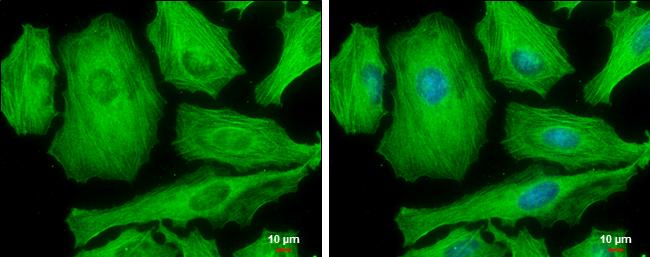 Phospho-MYH9 (Ser1943) Antibody in Immunofluorescence (IF)
