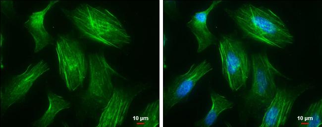 MYH10 Antibody in Immunocytochemistry (ICC/IF)