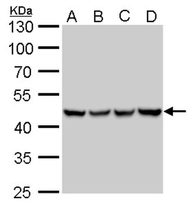 UQCRC1 Antibody in Western Blot (WB)