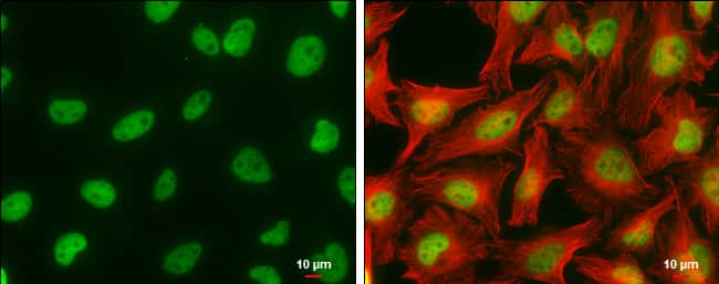 CFDP1 Antibody in Immunocytochemistry (ICC)