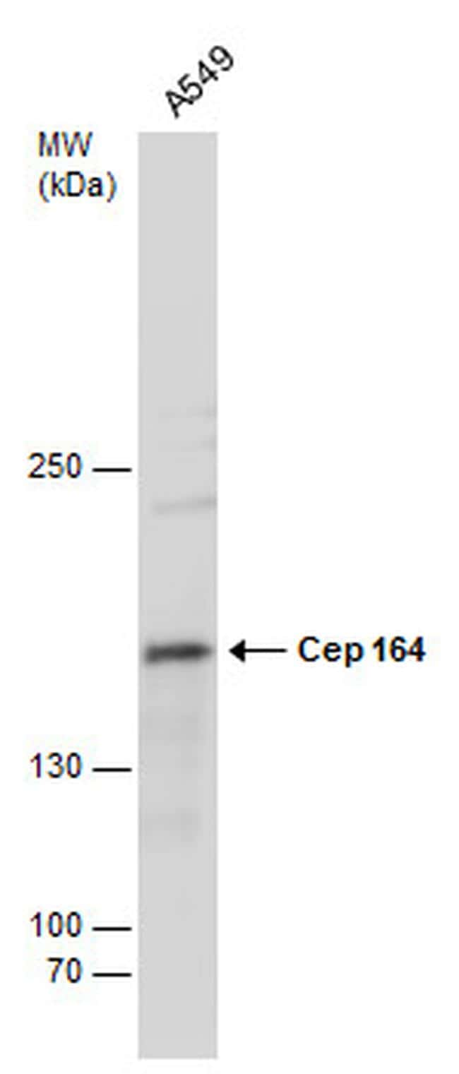 CEP164 Antibody in Western Blot (WB)