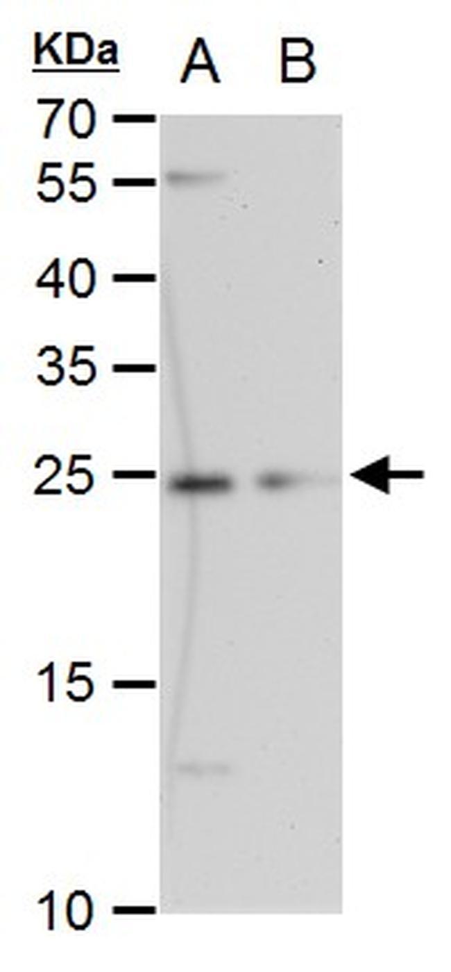 ETHE1 Antibody in Western Blot (WB)
