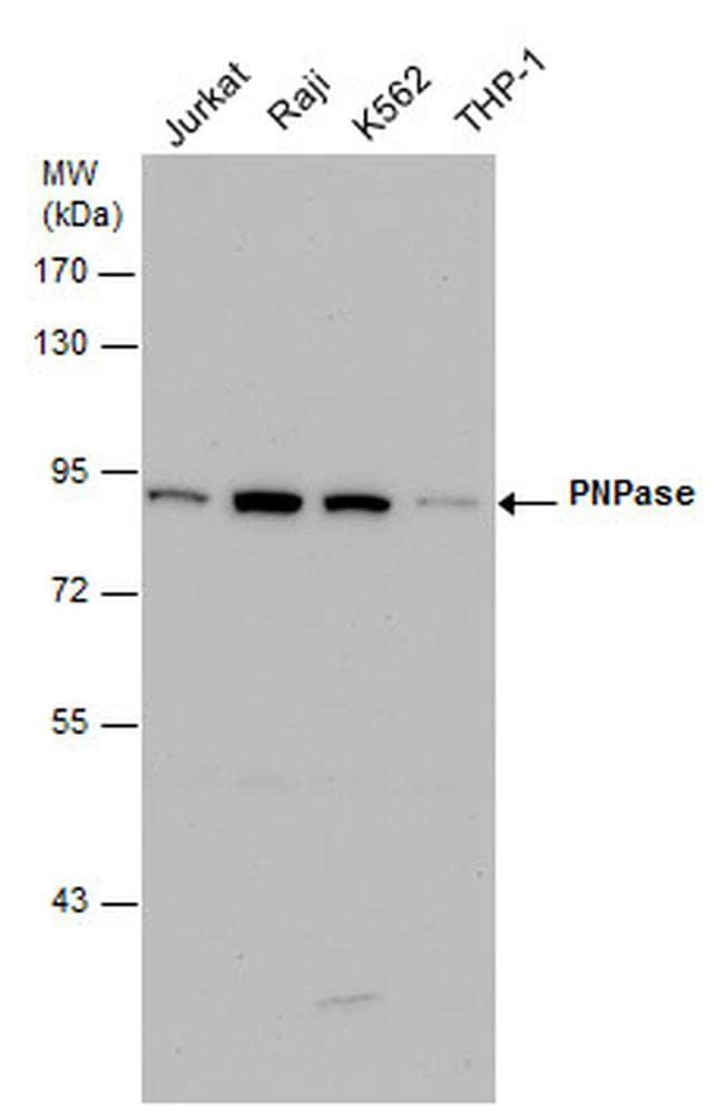 PNPase Antibody in Western Blot (WB)