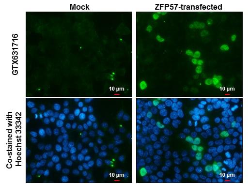 ZFP57 Antibody in Immunocytochemistry (ICC)