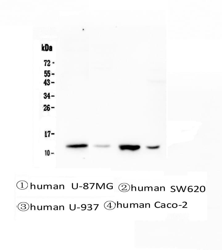 Cystatin B Antibody in Western Blot (WB)