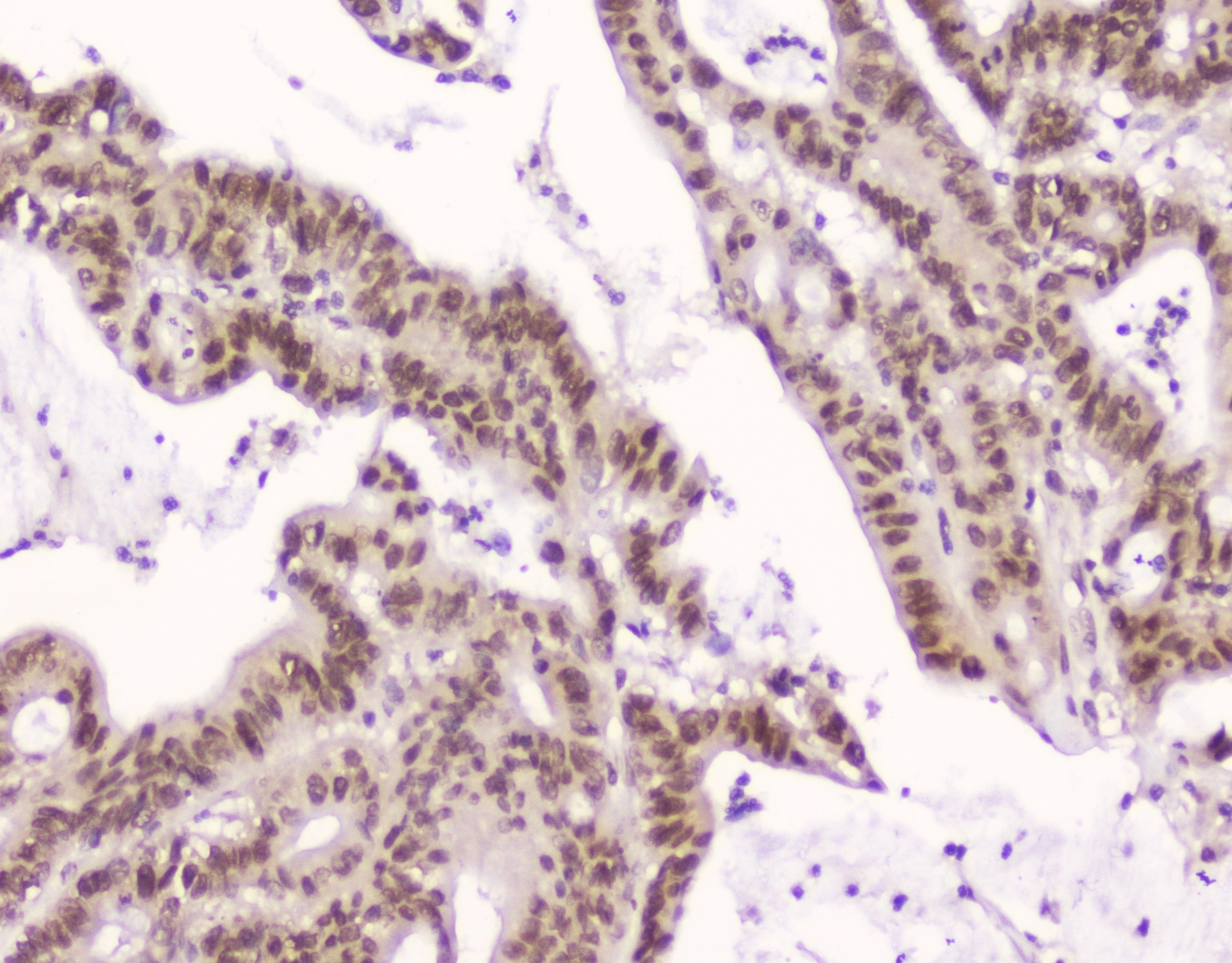 CRM1 Antibody in Immunohistochemistry (Paraffin) (IHC (P))