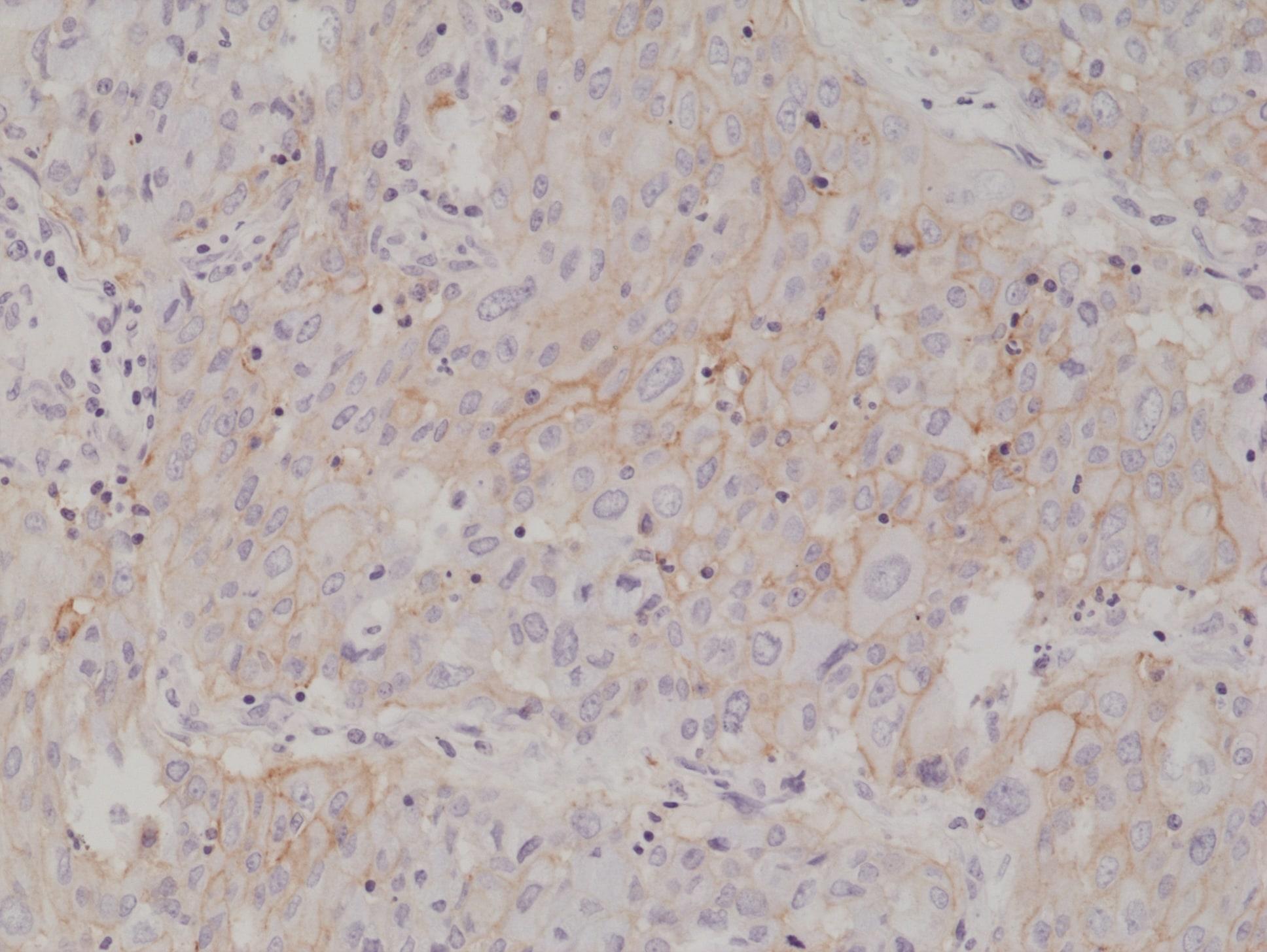 PD-L1 (CD274) Antibody in Immunohistochemistry (Paraffin) (IHC (P))
