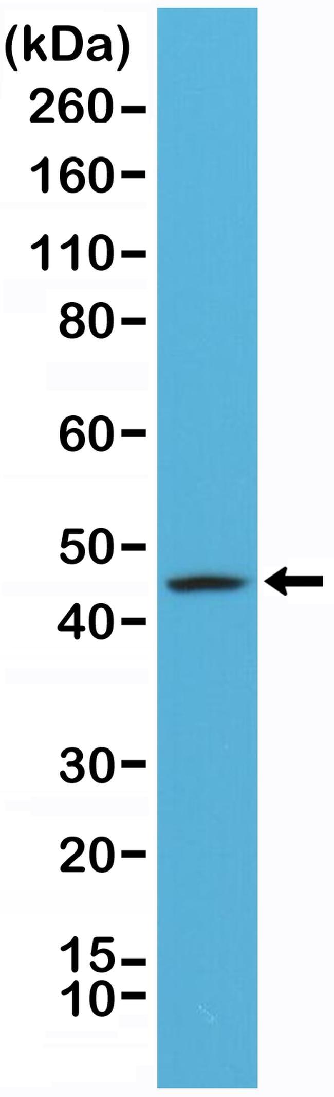 Cytokeratin 20 Antibody in Western Blot (WB)