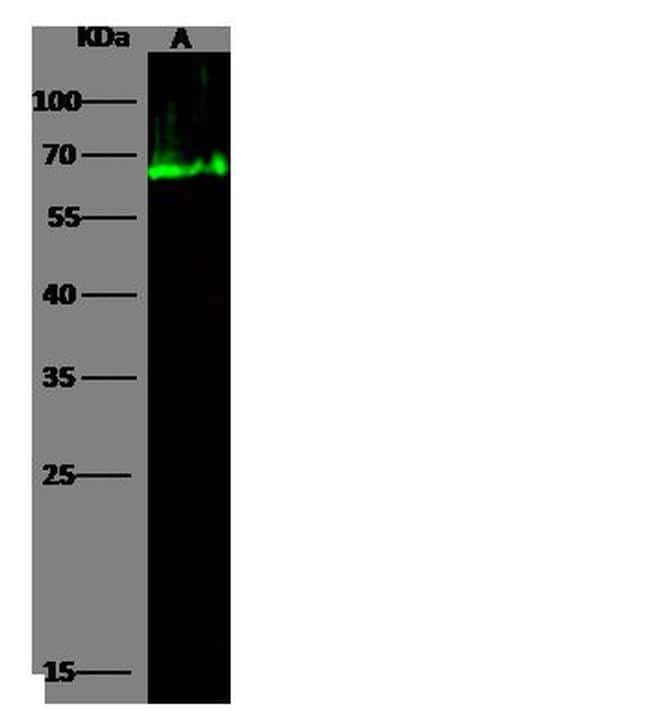 Human Serum Albumin Antibody in Western Blot (WB)