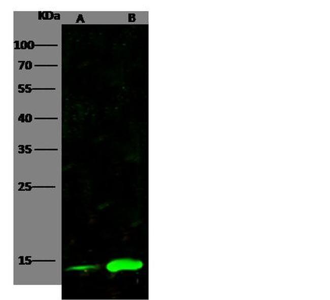 CRABP2 Antibody in Western Blot (WB)