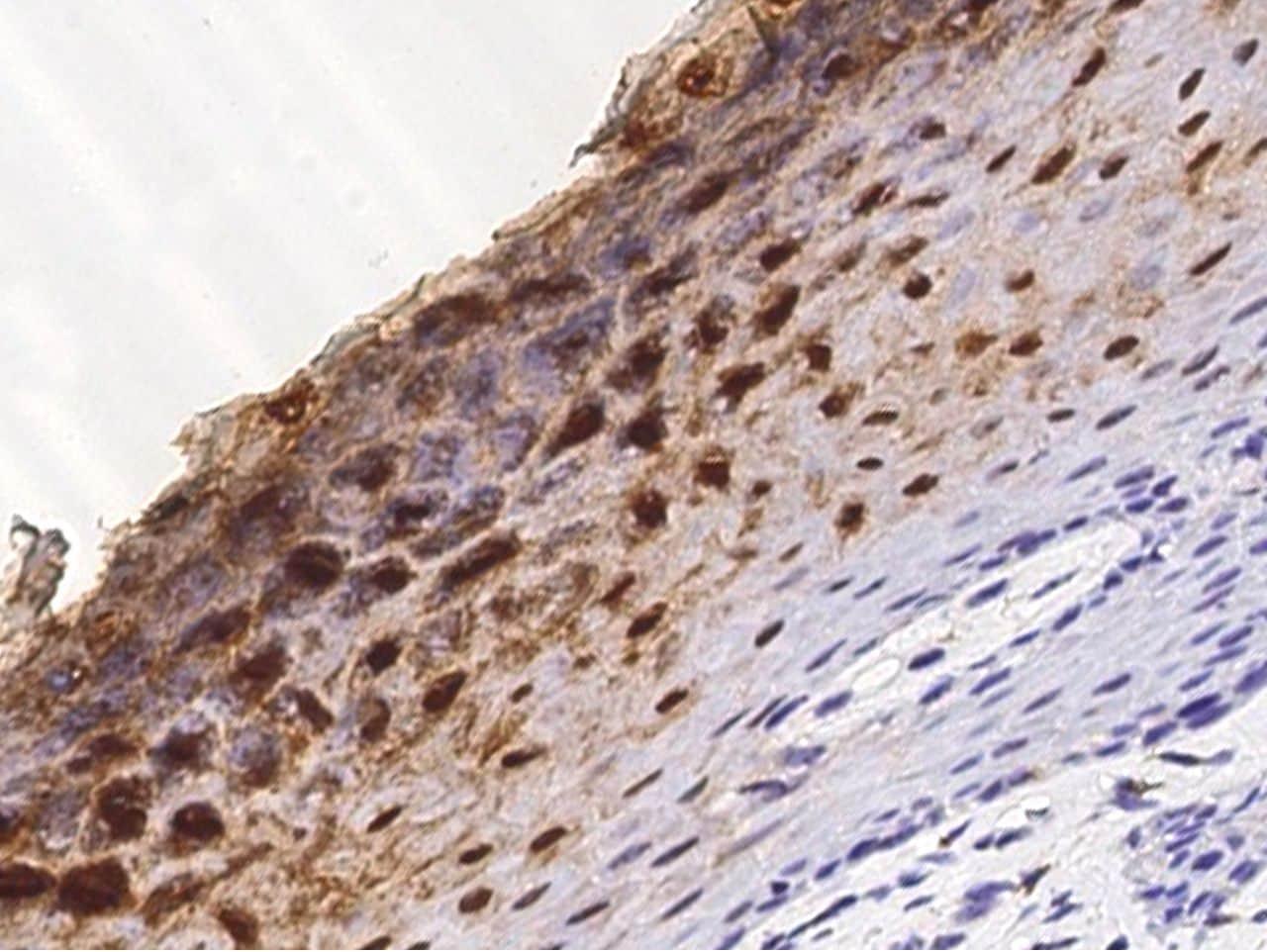 Cystatin A Antibody in Immunohistochemistry (Paraffin) (IHC (P))