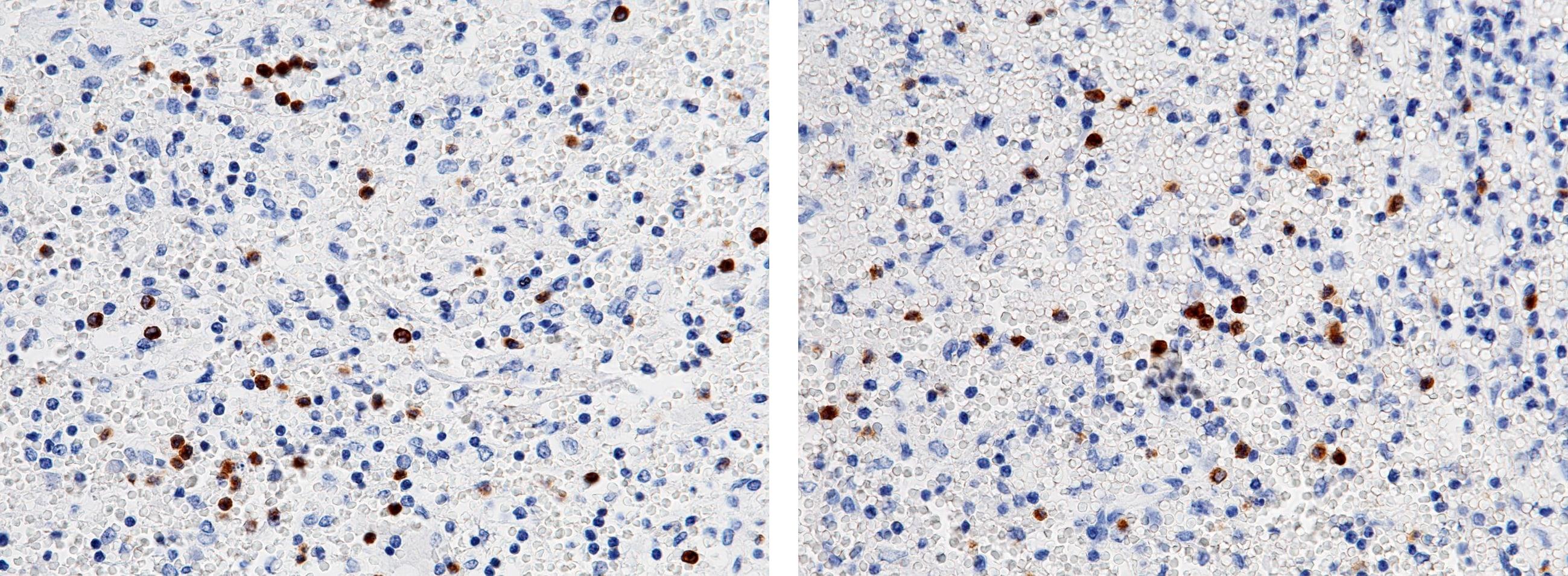 FCN1 Antibody in Immunohistochemistry (Paraffin) (IHC (P))