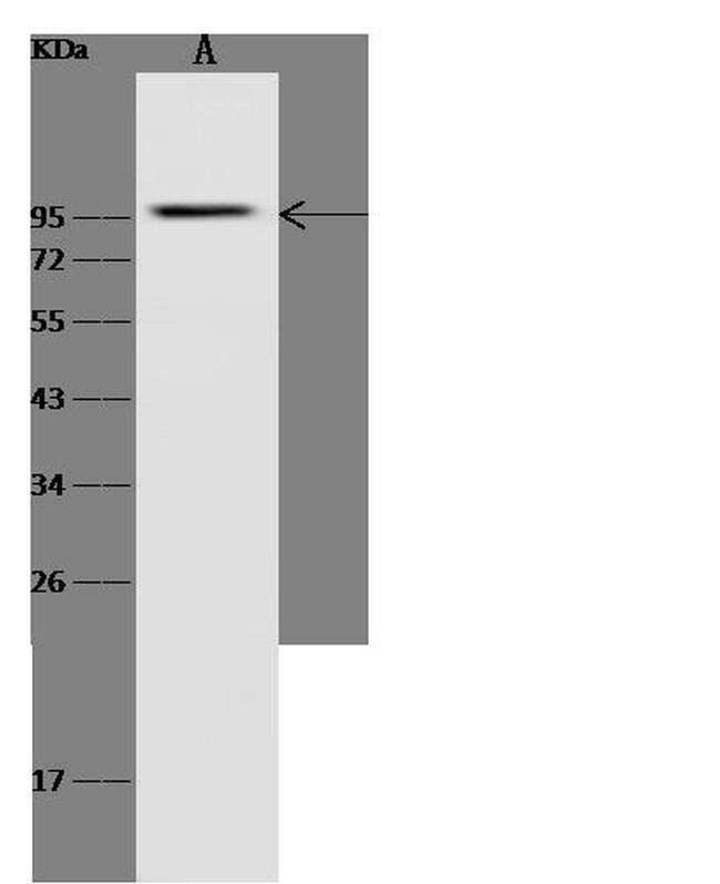 GCK Antibody in Western Blot (WB)