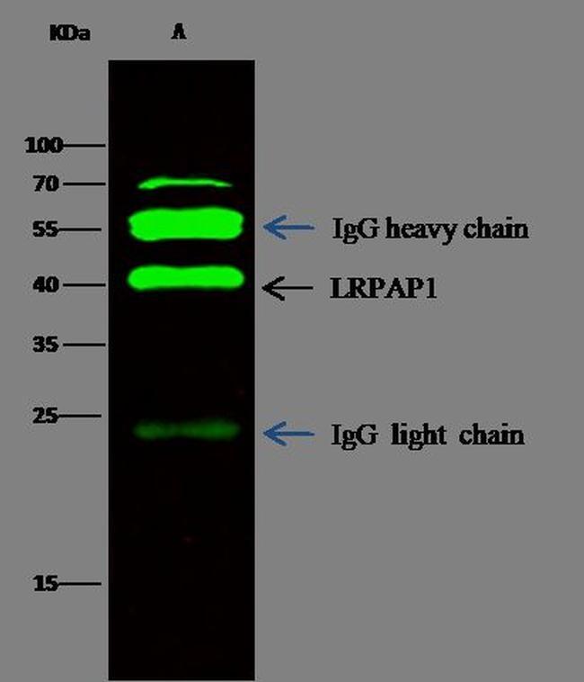 RAP Antibody in Immunoprecipitation (IP)