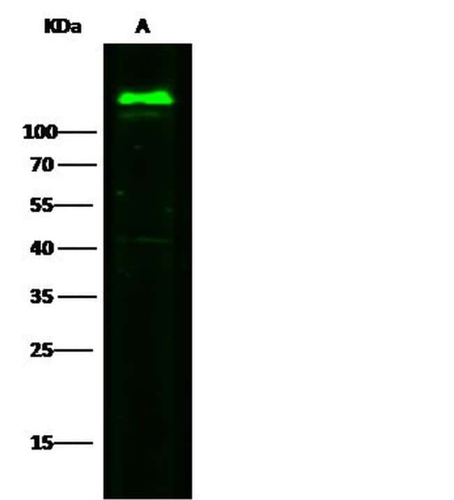 CD146 Antibody in Western Blot (WB)